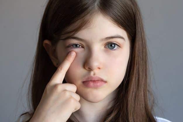 conjuntivitis-alergias-nino-tiene-ojos-hinchados-nina-tiene-dolor-ocular-lesion-ocular